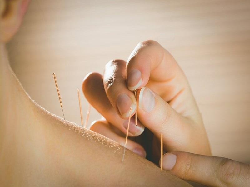 L'Agopuntura Tradizionale Cinese